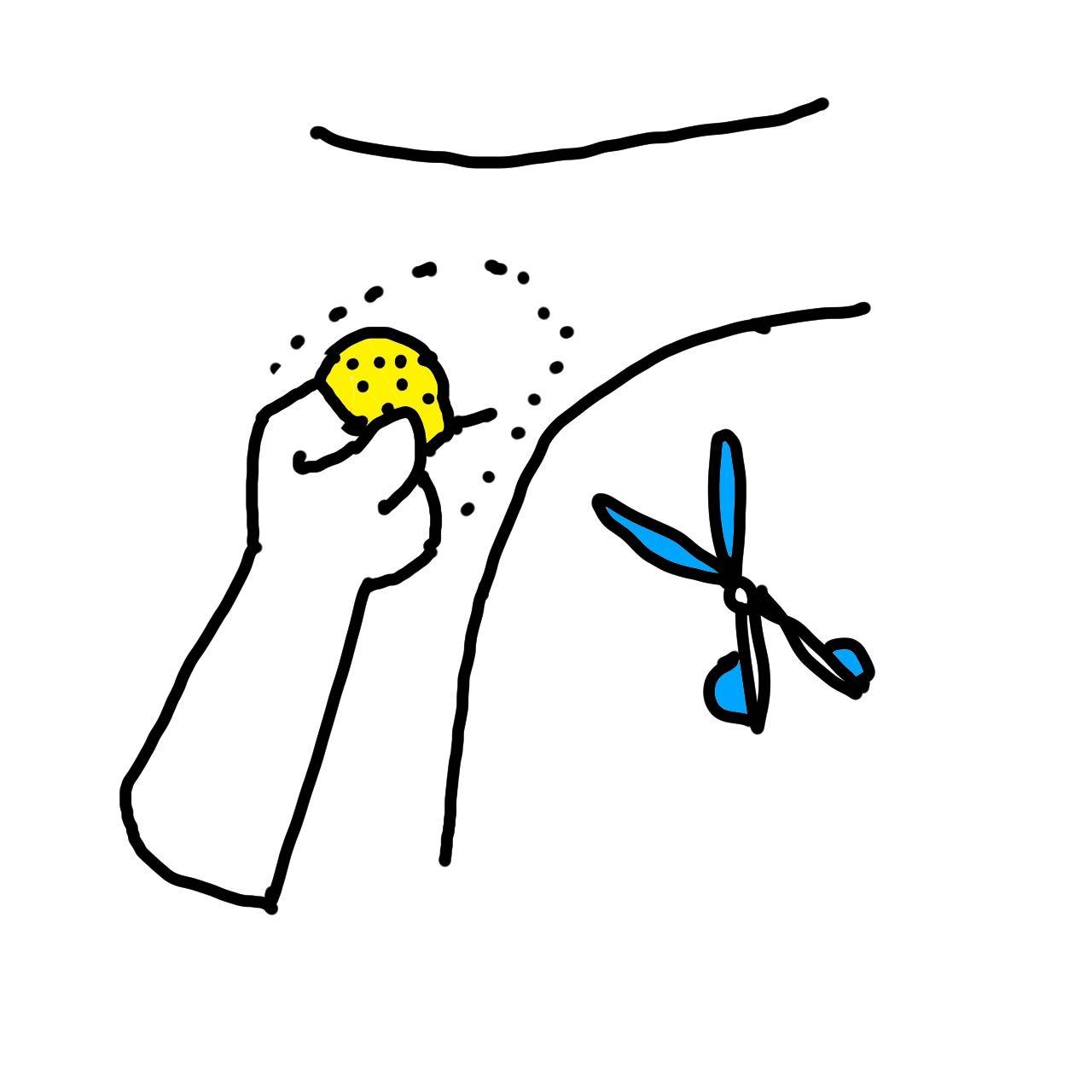 ワキガ手術